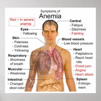 Carta de los síntomas de la anemia de la enfermeda póster