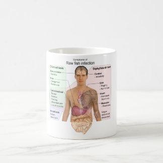 Carta de los síntomas de la infección de los taza de café