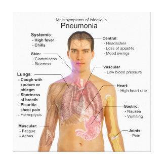 Carta de los síntomas de la pulmonía impresiones en lona estiradas