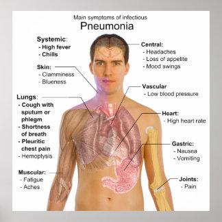 Carta de los síntomas de la pulmonía póster