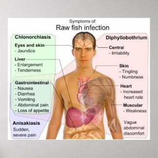 Carta de síntomas de una infección de los pescados poster