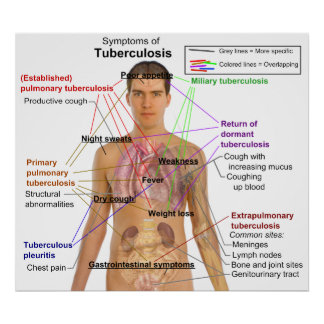 Carta del síntoma de la tuberculosis en seres huma póster