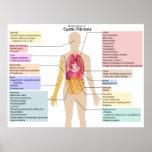 Carta detallada de los síntomas de la fibrosis quí impresiones