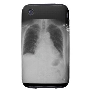 Casamata del iPhone 3G/3GS del ~ del rayo del Carcasa Resistente Para iPhone