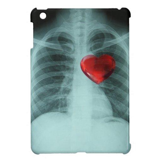 Caso del corazón de la radiografía iPad mini coberturas