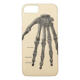Caso médico del iPhone 7 de los huesos de mano de Funda iPhone 7