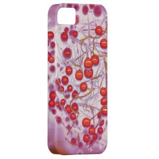 Caso rosado bonito del iphone de la ramita del ará iPhone 5 cárcasa