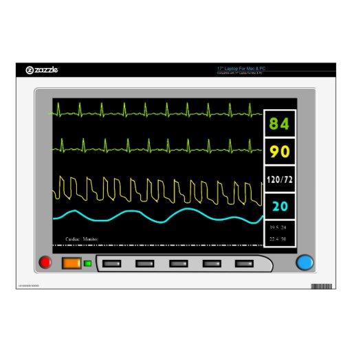 Casos del iPhone y de la electrónica del monitor c Calcomanía Para Portátil