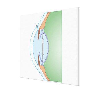 Cataract Surgery Canvas Prints