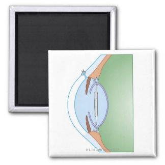Cataract Surgery Magnets