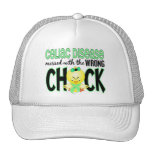 Celiac Disease Messed With The Wrong Chick Trucker Hats