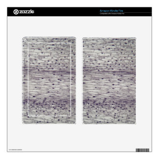 Cells of a root under the microscope. kindle fire skin