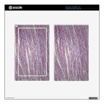 Cells of human uterus tissue with inoffensive tumo kindle fire skin