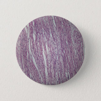 Cells of human uterus tissue with inoffensive tumo pinback button