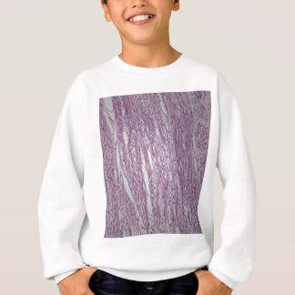 Cells of human uterus tissue with inoffensive tumo sweatshirt