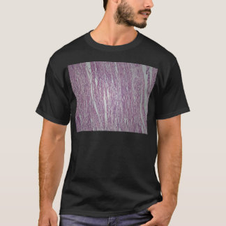 Cells of human uterus tissue with inoffensive tumo T-Shirt