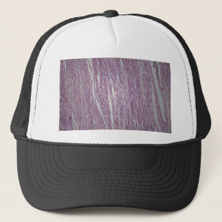 Cells of human uterus tissue with inoffensive tumo trucker hat
