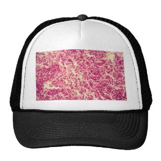 Células del ganglio linfático debajo del gorras