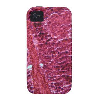 Células del páncreas debajo del microscopio Case-Mate iPhone 4 fundas