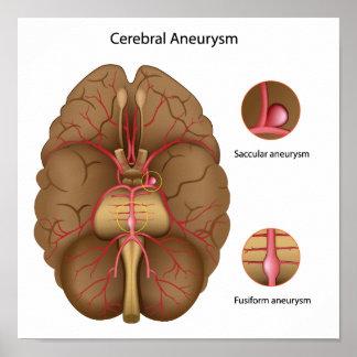 Cerebral aneurysm Poster
