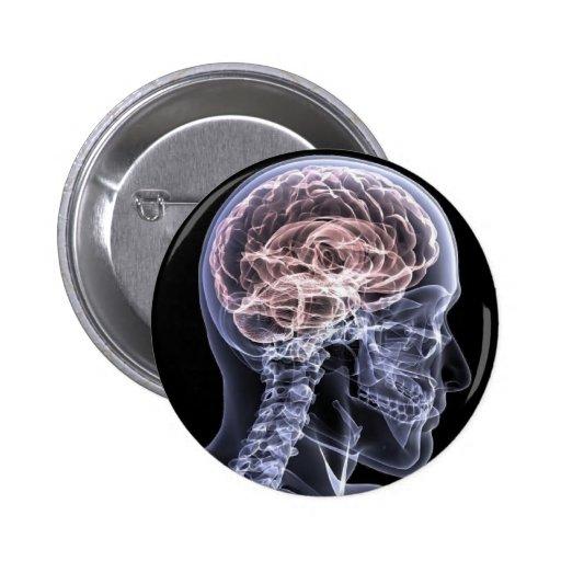 Cerebro de la radiografía pin