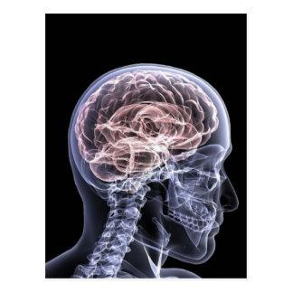 Cerebro de la radiografía tarjeta postal