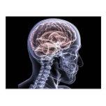Cerebro de la radiografía tarjetas postales