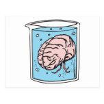 cerebro en un tarro tarjetas postales