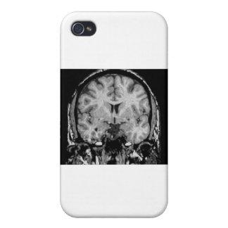 Cerebro MRI rebanada coronal iPhone 4 Cárcasas