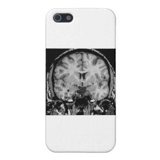 Cerebro MRI rebanada coronal iPhone 5 Coberturas