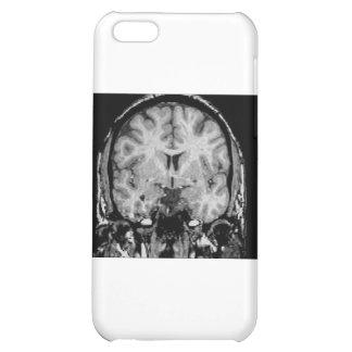 Cerebro MRI rebanada coronal