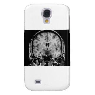 Cerebro MRI, rebanada coronal Funda Para Galaxy S4