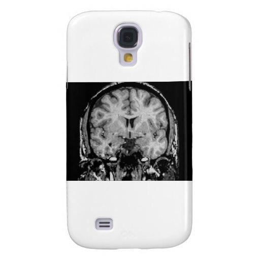 Cerebro MRI, rebanada coronal Funda Samsung S4