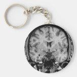 Cerebro MRI, rebanada coronal Llavero