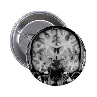 Cerebro MRI, rebanada coronal Pin Redondo 5 Cm