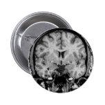 Cerebro MRI, rebanada coronal Pins