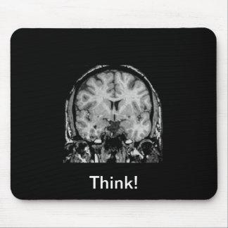 Cerebro MRI, rebanada coronal Tapete De Raton