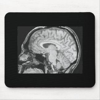 Cerebro MRI Tapete De Ratones