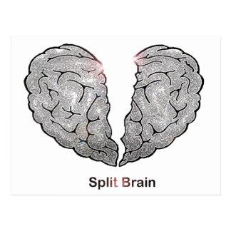 Cerebro partido postal