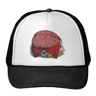 Cerebro que tiembla gorras de camionero