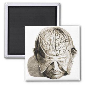 Cerebros médicos del ejemplo del cerebro del imán cuadrado