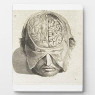 Cerebros Placas