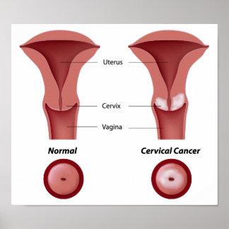 Cervical cancer  Poster