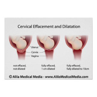 Cervical effacement and dilatation chart poster
