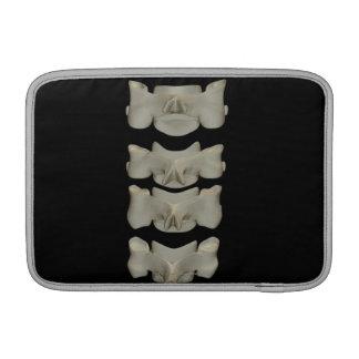 Cervical Vertebrae MacBook Sleeves