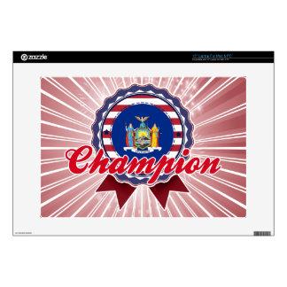 Champion, NY Laptop Decals