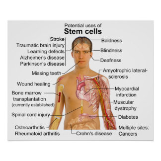 Chart of Potential Uses for Stem Cell Treatments Posters