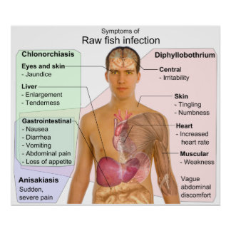 Chart of Symptoms of a Raw Fish Infection Posters