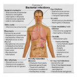 Chart of the Main Bacterial Infections in Humans Posters