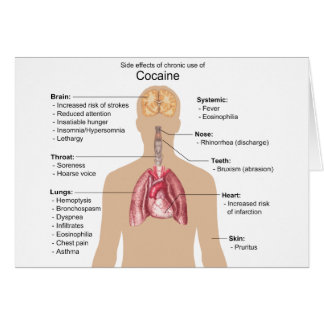 Chart of the Side Effects of Chronic Cocaine Use Card